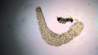 Freshwater polichaete under  microscope / Poliqueto visto con microscopio (III)