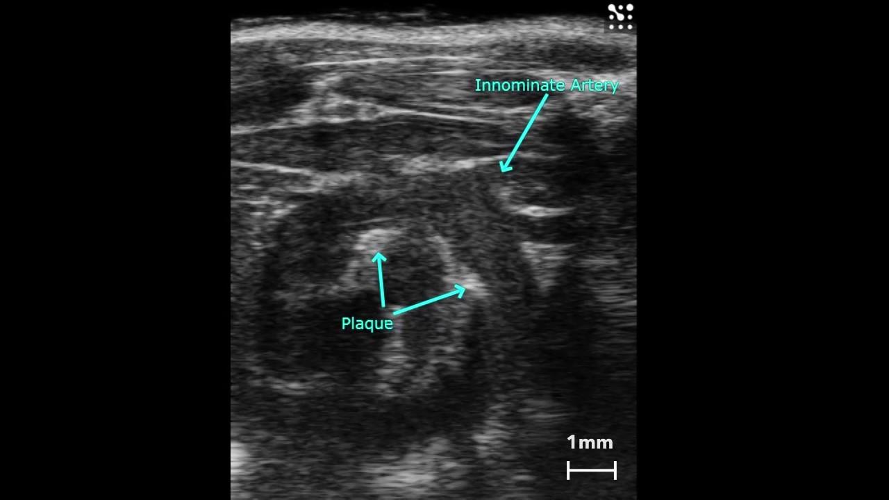 Preclinical Cardiovascular Imaging   FUJIFILM VisualSonics