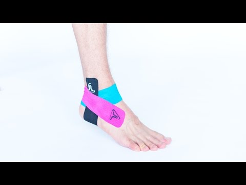 "Video: Truetape Pre-cut ""Athlete"" Kinesiology Tape"