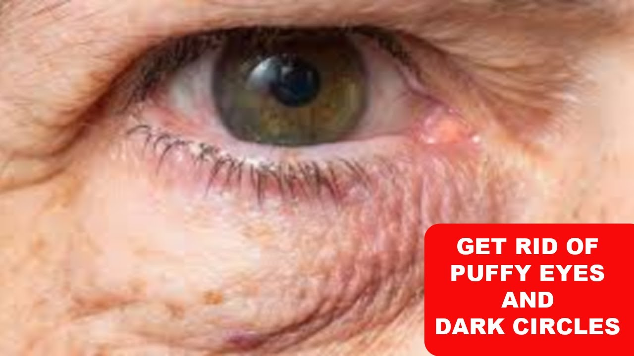 JUST 3 DAYS, USE THIS TO CLEAR DARK CIRCLES, PUFFY EYES AND EYE BAGS, 100% WORKING