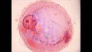 Célula Urotelial en Autofagia en Sedimento Urinario