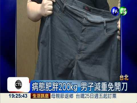 病態肥胖免開刀 200kg男甩81kg