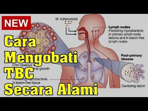 cara-mengobati-tbc-secara-alami