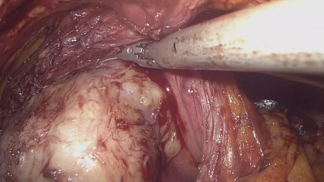 intervento adenoma prostatico benigno surgery