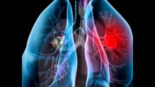 New york mesothelioma lawyer