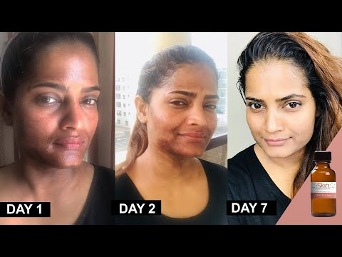 25% TCA Chemical Peel At Home Method And Progress By Hina (Urdu/Hindi)