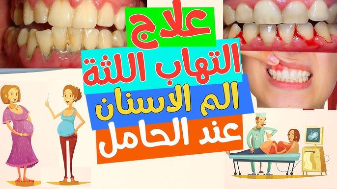 علاج التهاب اللثة عند الحامل و الم الاسنان عند الحامل Youtube