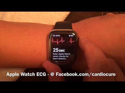Apple Watch Echocardiogram Heart ECG App Review