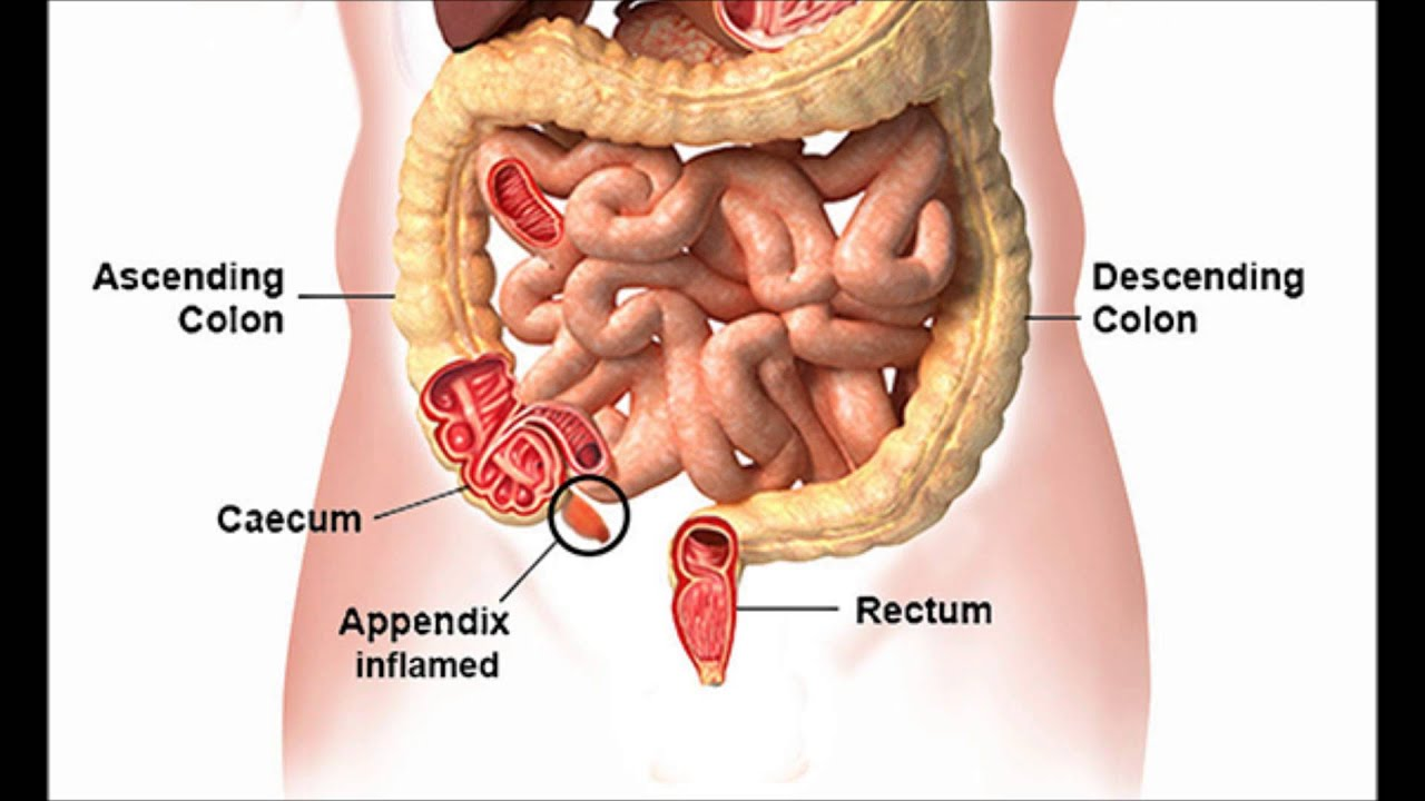 Appendicitis in Surgery - YouTube