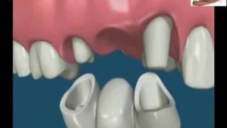 Ask Dr Atef, تركيبات الأسنان الثابتة - الجسور