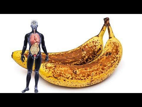 ماذا يفعل الموز ذو النقاط السوداء في الجسم؟  - نشر قبل 2 ساعة