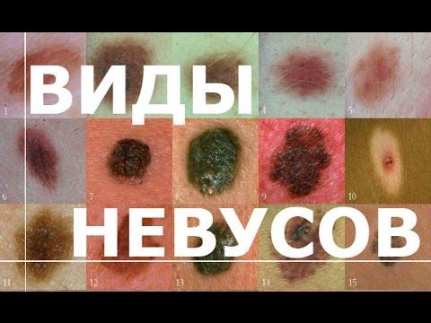 Невусы - виды невусов, причины и лечение