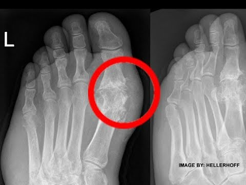 gout medication starts with a c how to decrease uric acid in your system what are the foods containing uric acid