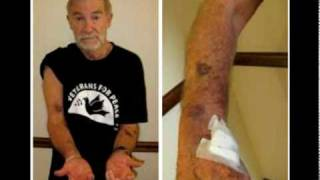 Ray McGovern Bloodied, Bruised and Arrested at Clinton Speech