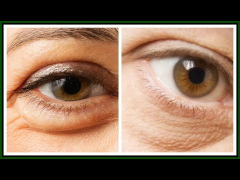 5 WAYS TO GET RID OF PUFFY EYES |SIMPLE HOME REMEDIES FOR PUFFY EYES |Khichi Beauty