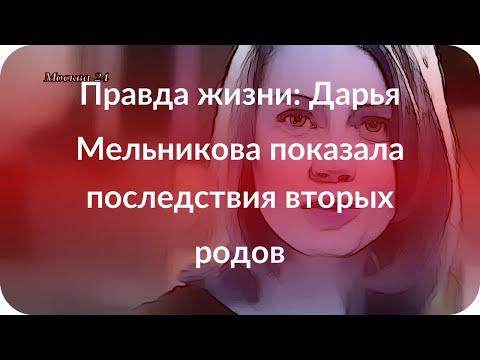 Правда жизни: Дарья Мельникова показала последствия вторых родов