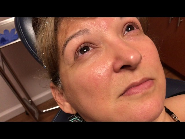 Rhinoplasty Incision Close-Up 6 Years Later in 2X HD