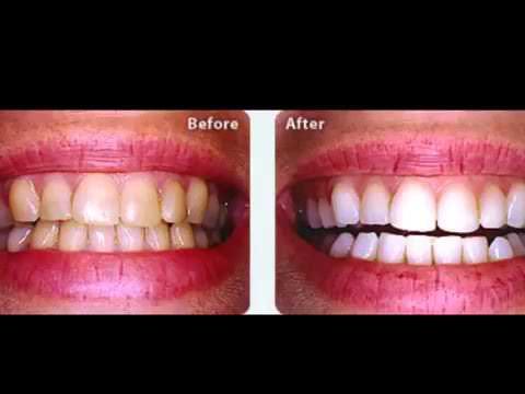מעולה קרסט ערכה להלבנת שיניים - Crest 3D White Whitestrips - YouTube FK-19