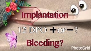 VLOG 4-5-17 12 DPO Live Pregnancy Test and More Implantation Bleeding