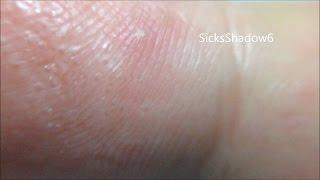 プツプツ水疱が指にビッシリ大量発生!汗疱