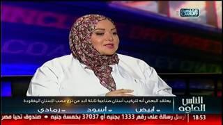 الناس الحلوة | فنيات علاج مشاكل الأسنان مع دكتورة إسراء أحمد السعيد