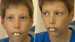 سخروا منه لأن أسنانه تشبه الأرنب لكن شاهد كيف أصبح بعد سنوات أدهش الجميع