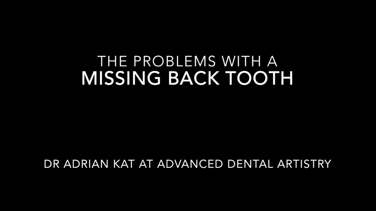 Dental Implant Quotes Replacing Misisng Back Teeth With Dental Implants  Youtube