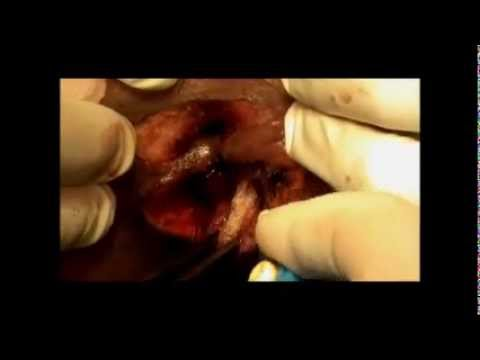 Hemorrhoidectomy A White Field Bloodless Piles Fissure