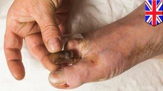 ตัดนิ้วเท้าตัวเองแบบไม่ใช้ยา อดีตนายทหารหัวใจสุดแกร่ง