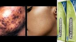 hqdefault - Is Nixoderm Good For Pimples