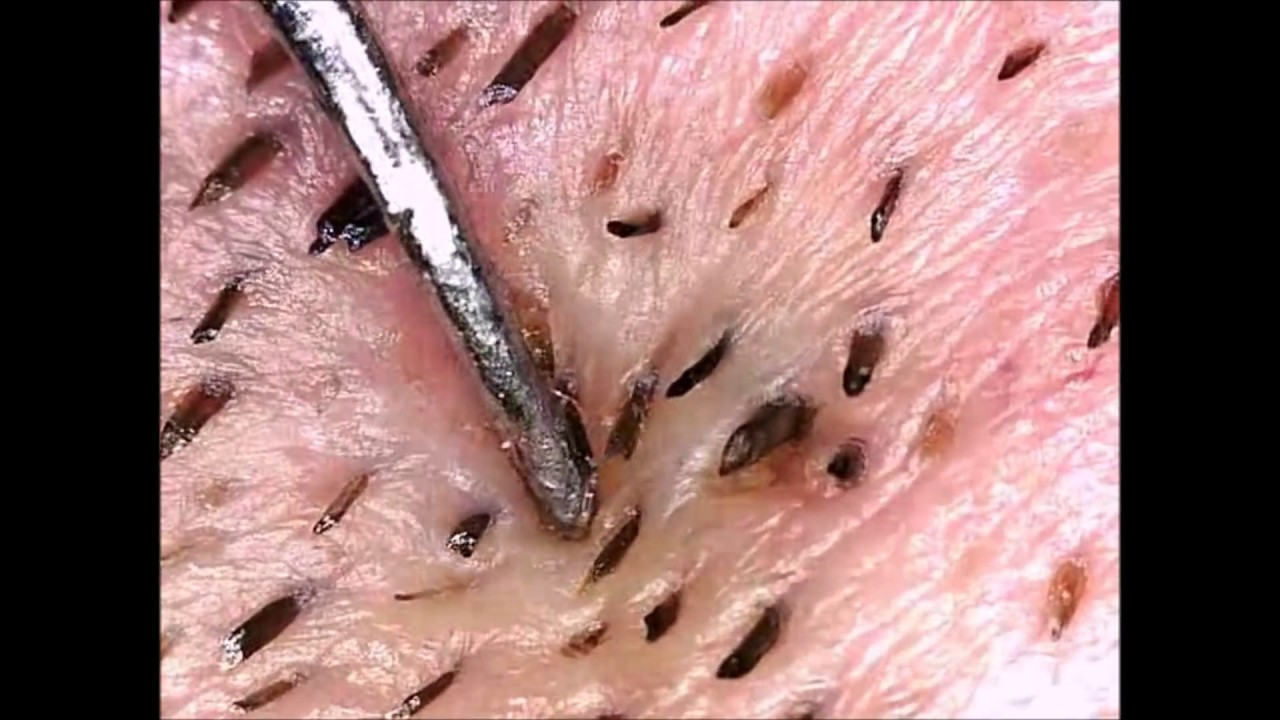 blackheads whiteheads pimples amp cysts by mr blackhead