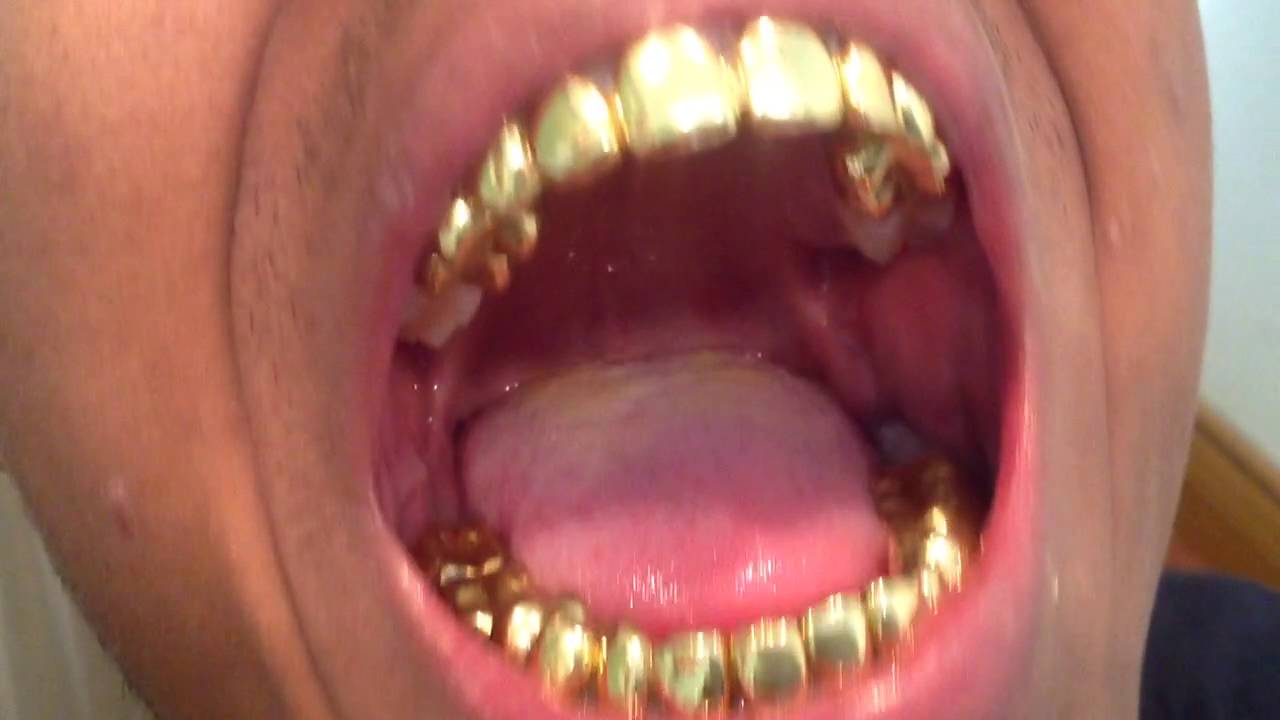 Goldteeth landogolds walltowall - YouTube