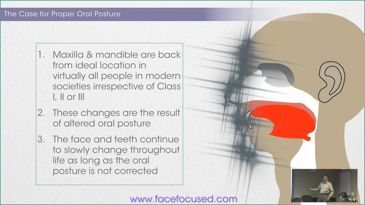 Image result for proper oral posture