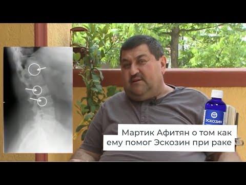 Пациент с хорошими результатами от Эскозина. Борьба с онкологией