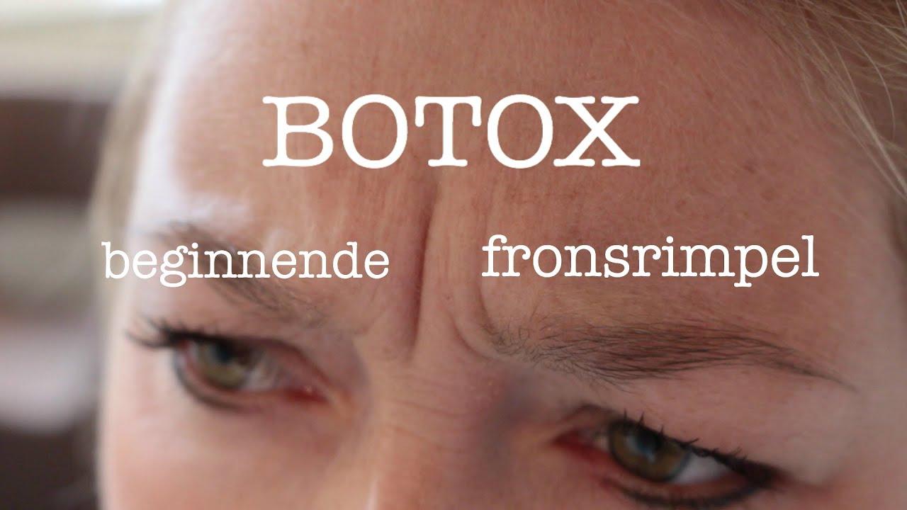 fronsrimpel botox