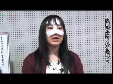 顔面に大ケガの女子プロレスラー安川惡斗、壮絶人生を語る