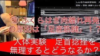 【人体実験③】ふくらはぎ肉離れエコー 足底筋腱