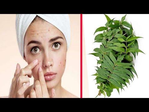 ব্রন-ও-ব্রনের-দাগ-দূর-করার-সহজ-ও-কার্যকরী-উপায়-||-how-to-remove-pimples-easily-at-home-||-by-hla