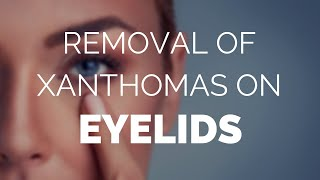 Removal of xanthomas on eyelids with Xanthel