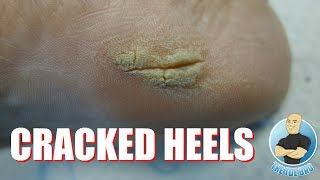 HOW TO GET RID OF CRACKED HEELS - FULL TREATMENT