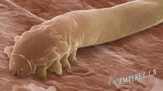 Demodex, el horrible parásito que vive en tu cara