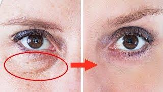 9 remedios caseros para deshacerse de los círculos oscuros bajo los ojos thumbnail