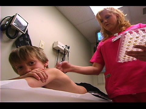 Watch This Kid Get Allergy Skin Testing