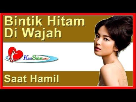 bintik-hitam-di-wajah-saat-hamil---video-kesehatan-hidup-wanita-indonesia