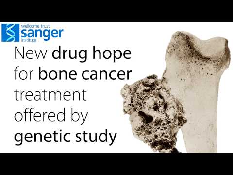Sanger Institute - Existing drugs could benefit patients with bone cancer, genetic study suggests