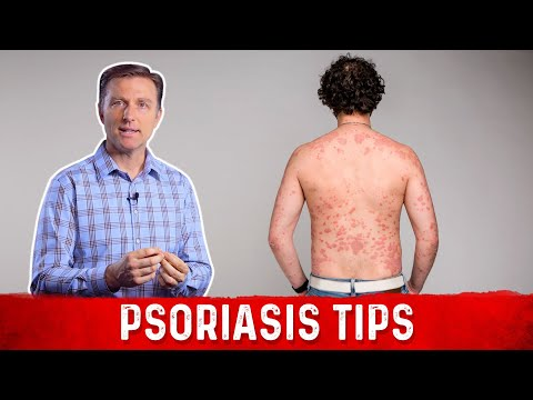 get-rid-of-the-cause-of-psoriasis-nutritionally
