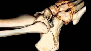 Calcaneus Fracture 2