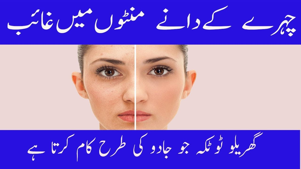 Get Rid Of Acne Scars Homemade Effective Remedies Urdu Hindi Youtube