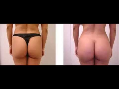 c93ae28e6 How Much Maca Root For A Bigger Booty - Bigger Butt Pills For Black Women -  YouTube