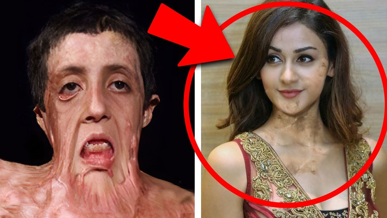 Fața acestei fetițe s-a topit în urma incendiului, Dar chirurgul a făcut un adevărat miracol...